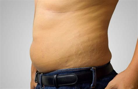 how to know if ypu'll get stretch marks picture 6