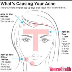 itchy cystic acne what does this mean picture 1