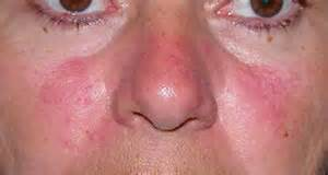 skin rash infectous picture 10