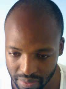 receding hairline picture 1