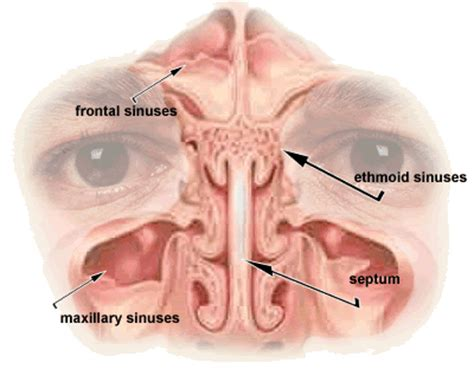 do sinus infections heal on their own picture 13