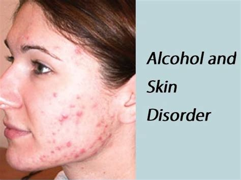 chronic liver disease skin name picture 10