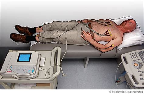 abnormal ekg and high blood pressure picture 12
