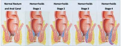 hemorrhoid care picture 2