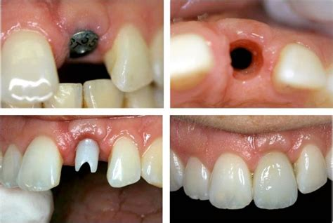 do h implants fail picture 6