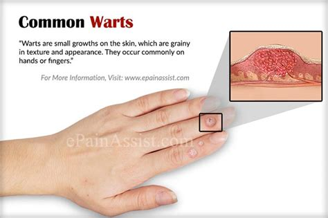 spread common warts picture 1