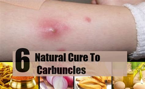 carbuncle homeopathic treatment picture 11