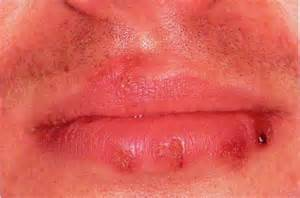type 1 oral herpes picture 5
