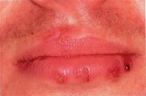 photos of herpes lesions picture 6