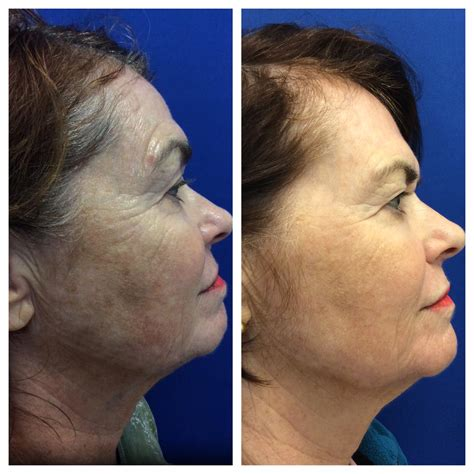 laser stretch mark removal dermatology picture 5