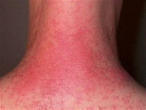 about skin rashes on the neck area picture 6