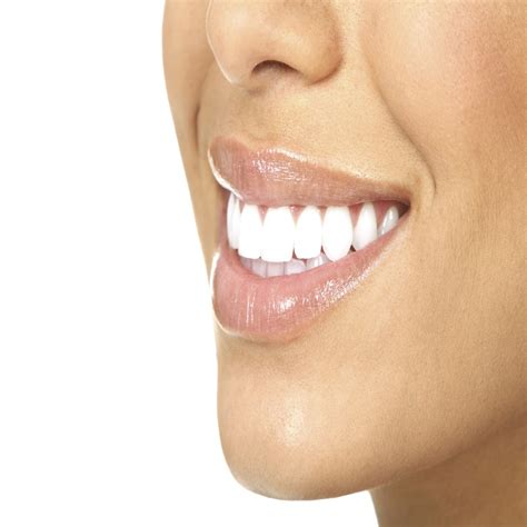 connecticut teeth whitening picture 10