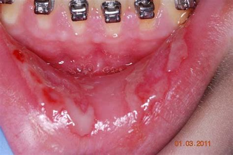 treatment for oral herpes simplex picture 5