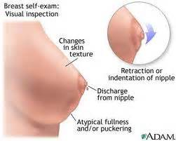 breast enlargement and pregnancy picture 3