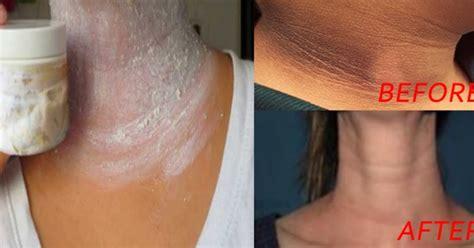 black neck under arm ki treatment by dr picture 7