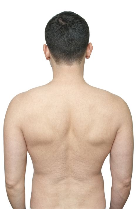 advanced glycation cause skin stretch marks picture 10