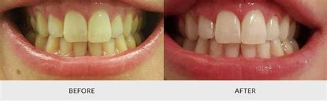 whiten your teeth to the max fast free picture 12