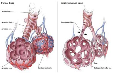 ill workcool that will workbacterial lung infection picture 2