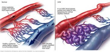 clip for avm bleed colon picture 3