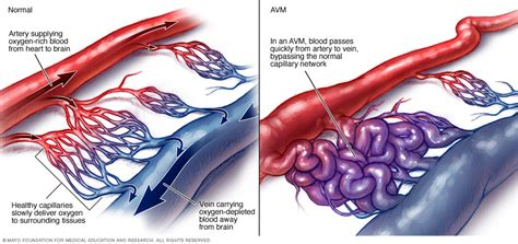 clip for avm bleed colon picture 7