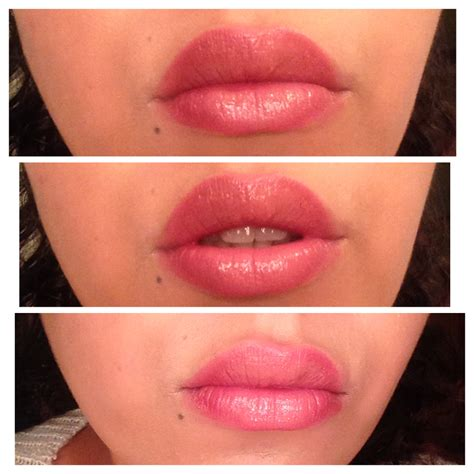 races with biggest lips picture 2