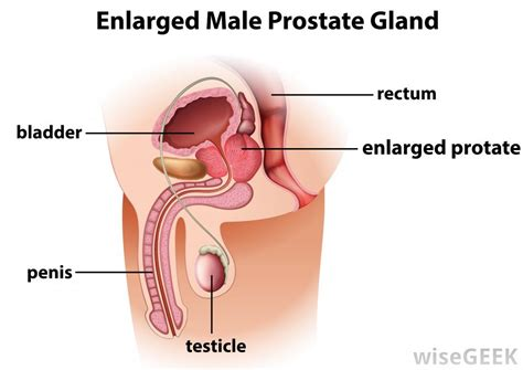 does a firm area on protrate mean cancer picture 2