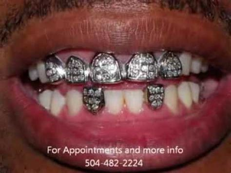 where to get gold teeth in new orleans picture 3