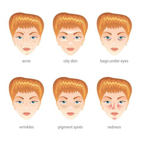 remove acne scars picture 14