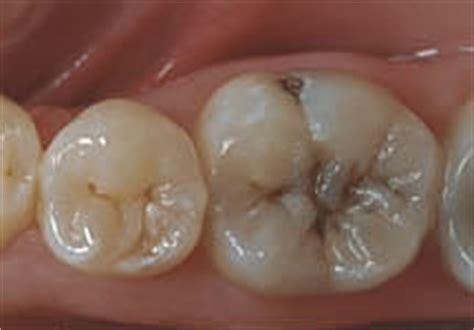 cavities in wisdom h picture 3