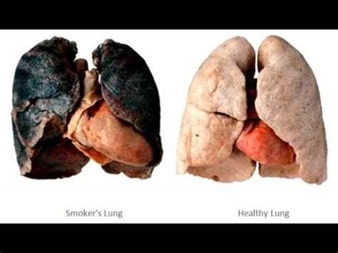 what affect does smoking have on healing after picture 3
