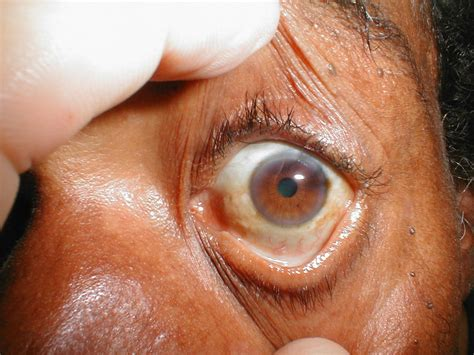 what are liver spots picture 1