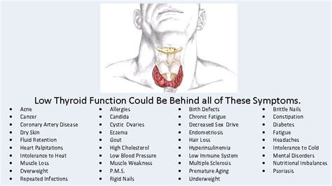 causes for low thyroid picture 2
