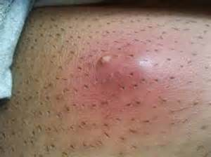 itchy cystic acne what does this mean picture 8