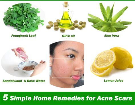 home remedies for acne picture 3