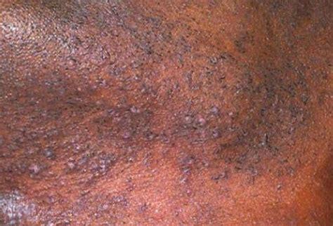 hair on face genital disturbances for urdu picture 9