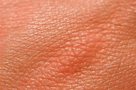 an skin picture 9