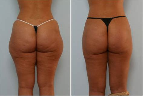 glutimax before and after picture 3