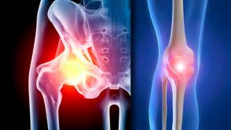 joint replacement hip and knee pain picture 9