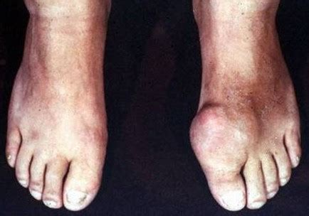 african american diet abd gout picture 7