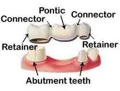 false teeth permanent picture 11