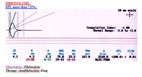fibrinolysis and liver failure picture 14