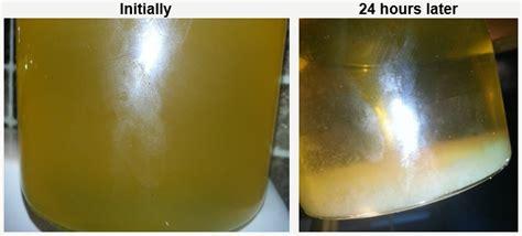 sedement in bladder picture 7