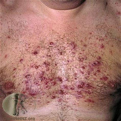 acne caused by prednisone picture 2