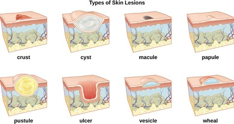 structure of skin modules picture 13