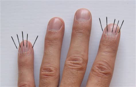 pain in joints of fingers picture 11