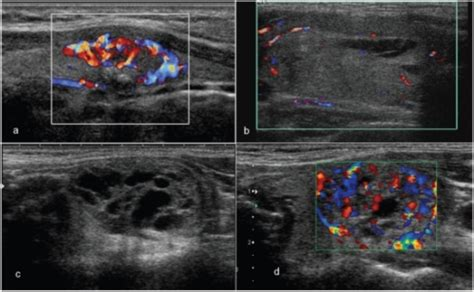 well defined nodule thyroid picture 18