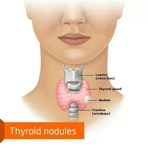ayurvedic approach to thyroid nodules picture 2