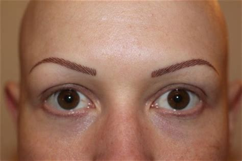 losing hair eyebrows picture 11