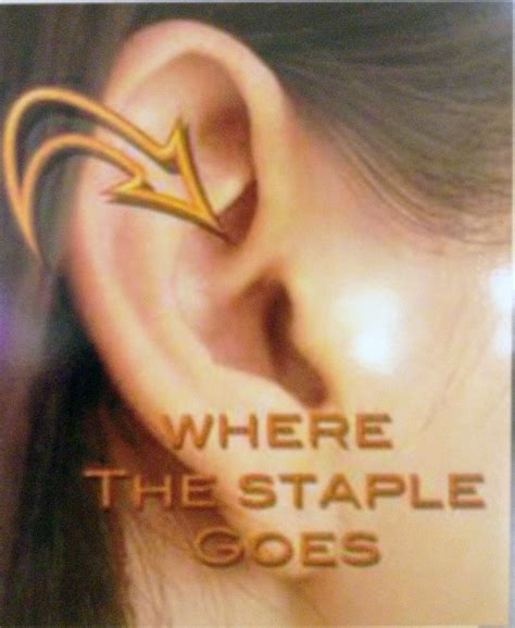 ear staple weight loss picture 3