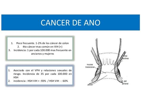 ano ang colon cancer picture 1